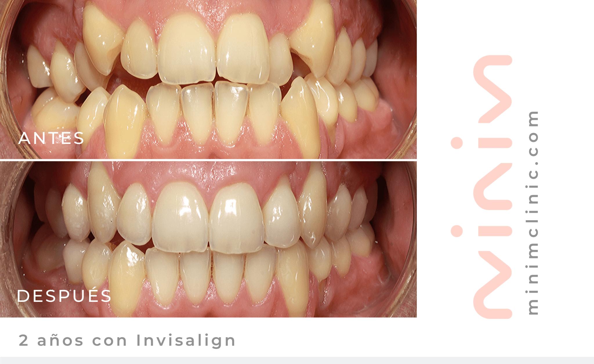 Foto del Antes y Después con Invisalign en Minim Clinic. Caso de Daniel tras 2 años con Invisalign. Él tenía mordida abierta y dientes apiñados. Ahora tiene sonrisa perfecta gracias a MINIM.