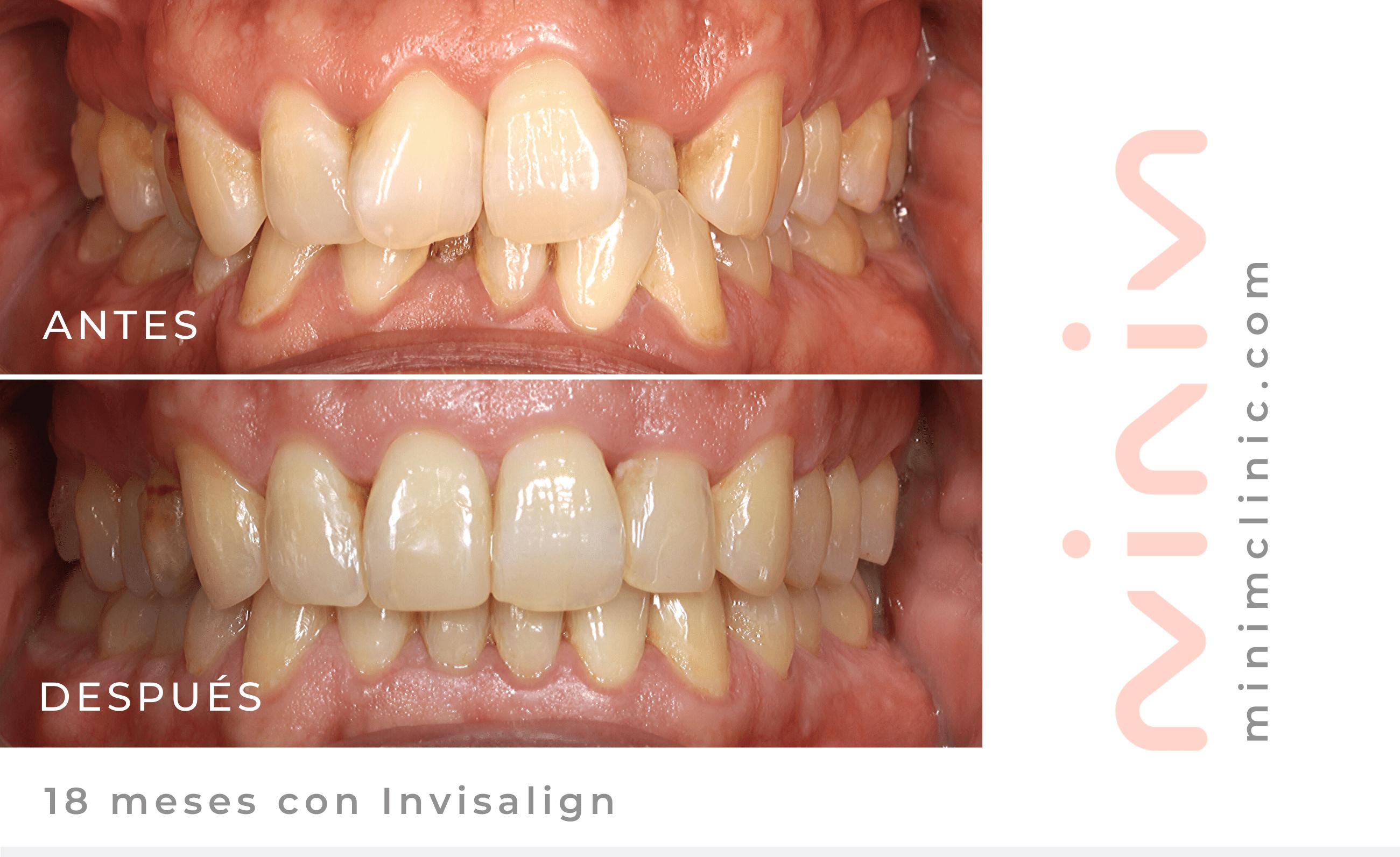 foto antes y despues con invisalign 18 meses caso dientes muy apiñados