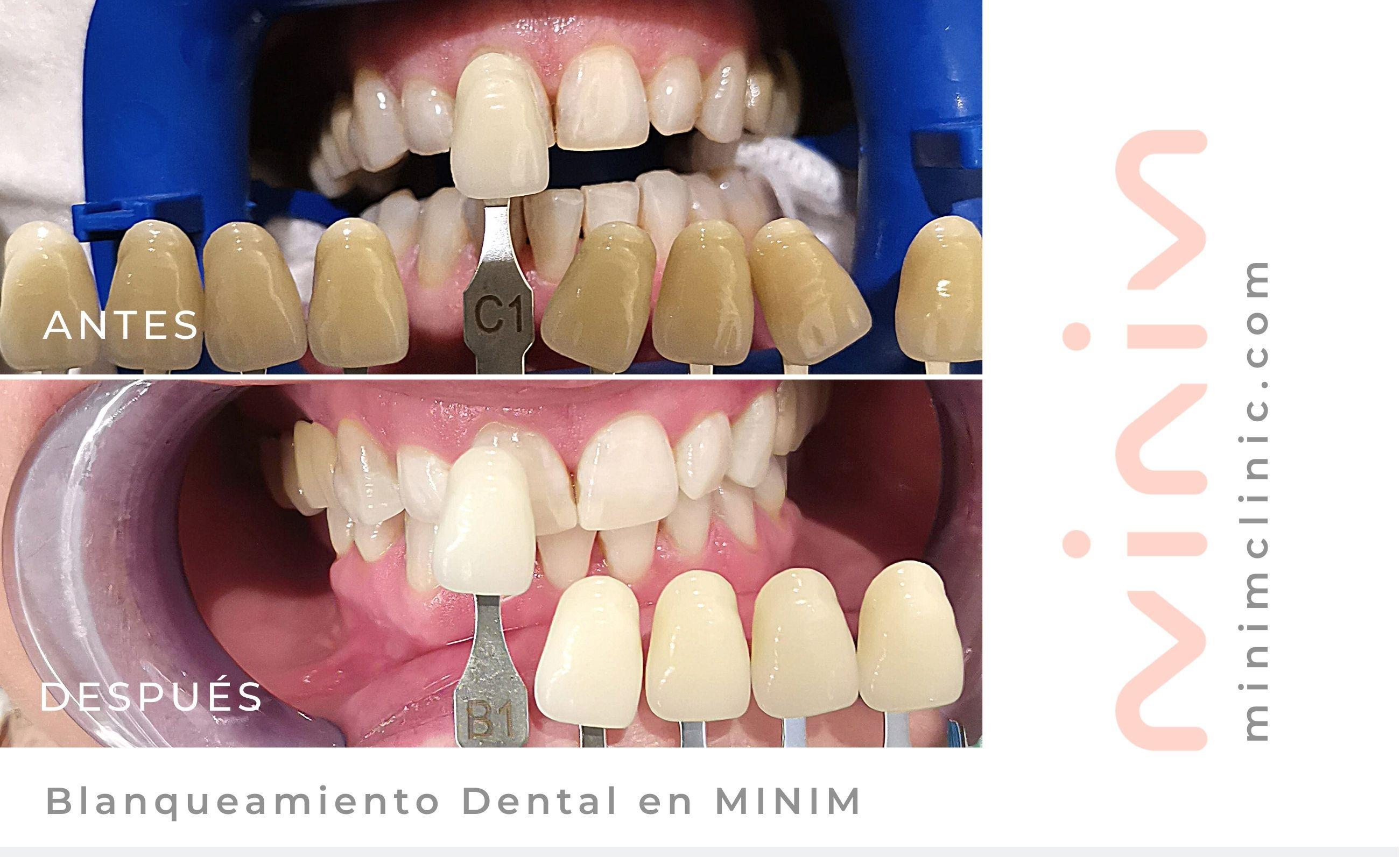 blanqueamiento dental rapido en minim barcelona