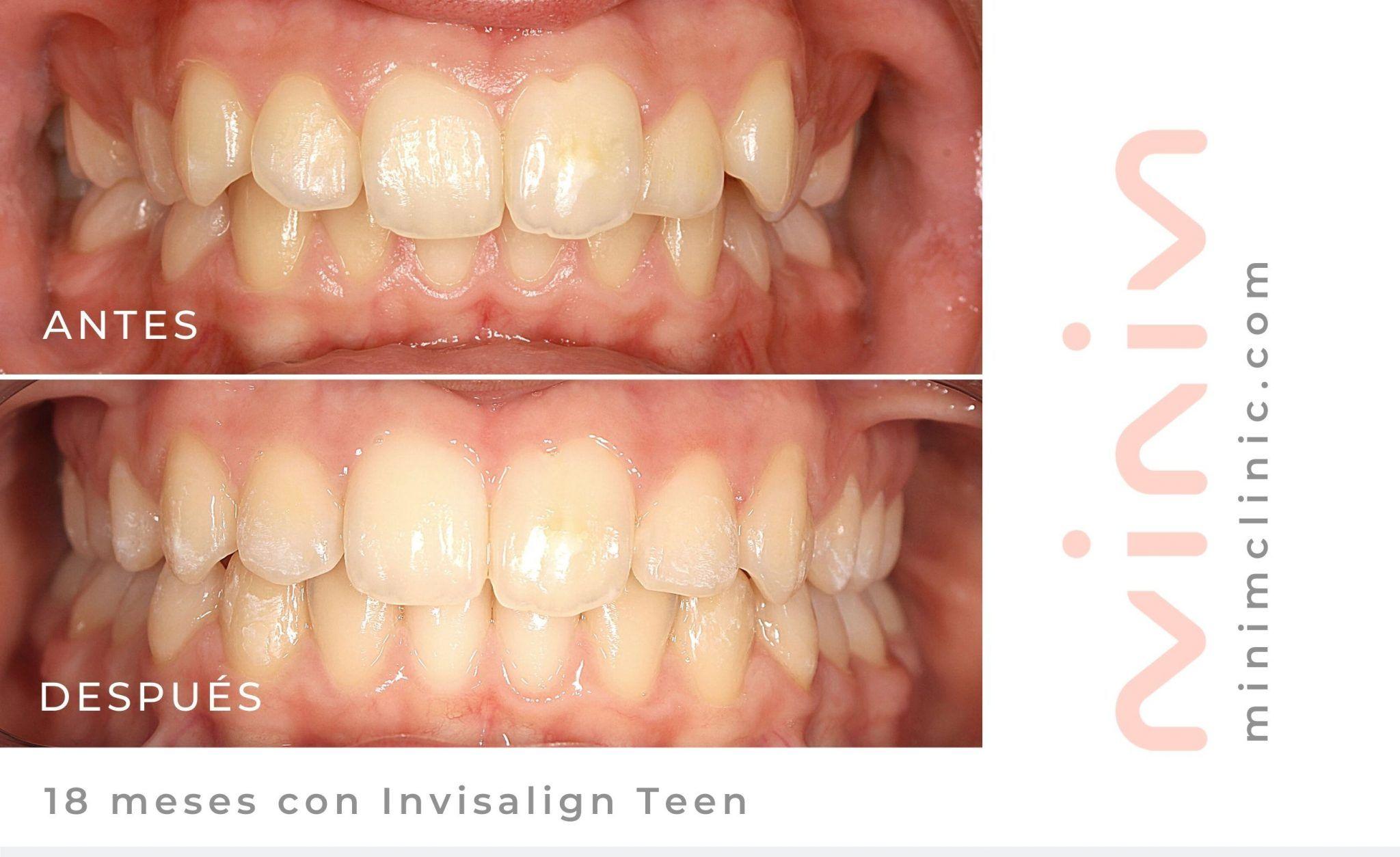 antes y después de 18 meses con el tratamiento de invisalign teen para adolescentes en MINIM Clinic