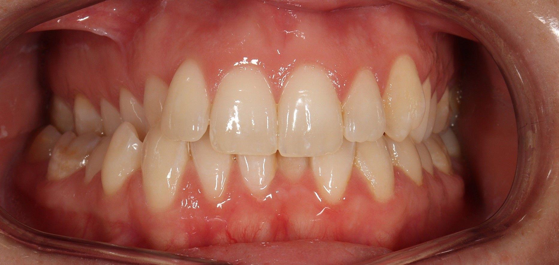 mordida cruzada ejemplo de un diente encima de otro y tratamiento
